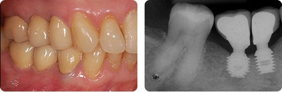 Coroas-individualizadas-sobre-os-implantes-2