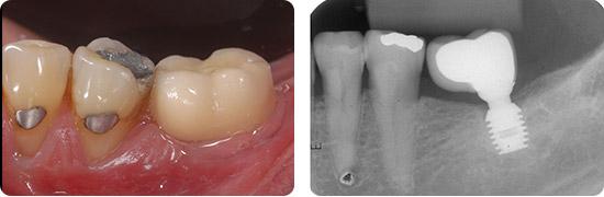 Coroas-individualizadas-sobre-os-implantes